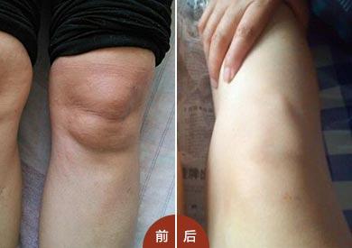膝关节疼痛典型风湿性关节炎前期症状